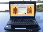 Meridian Diagnostic Instrument with Laptop 13.3 inch screen